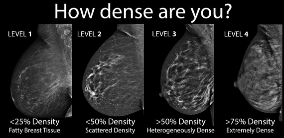 breast-density-mammogram