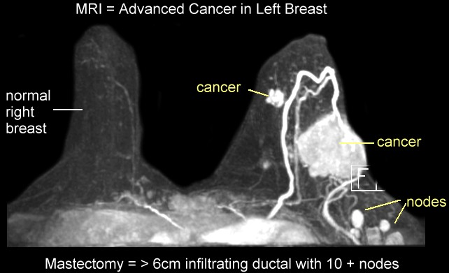 breast_mri_sah_1207